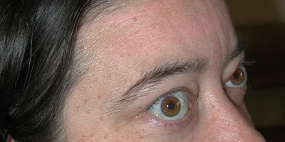 thyrotoxic20eye20disease20ws1 Kopie